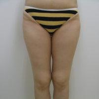 【脂肪吸引】太もも(全周【臀部含む】)術前