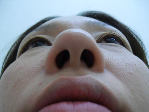 鼻プロテーゼ・鼻線縮小・耳介軟骨移植術前下から写真