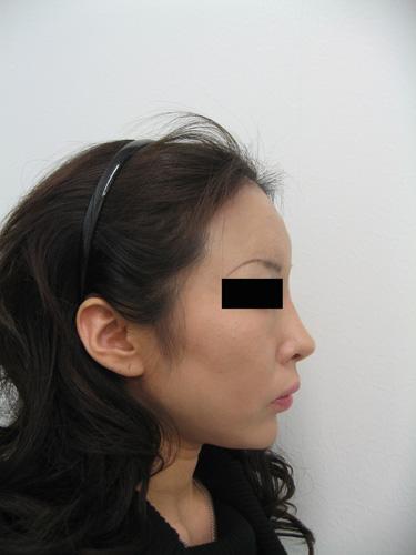 ヒアルロン酸注入(額)施術後(横)