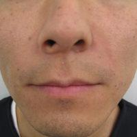 鼻唇溝ヒアルロン酸注入後(正面)