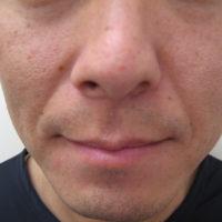 鼻唇溝ヒアルロン酸注入前(正面)