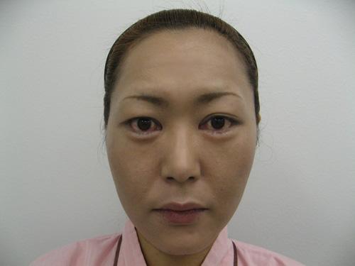 ナチュラルファイバー(頬、中顔面)・ヒアルロン酸注入(涙袋)施術後(正面)