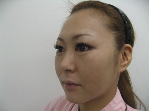 ナチュラルファイバー(頬、中顔面)・ヒアルロン酸注入(涙袋)施術後(ななめ)