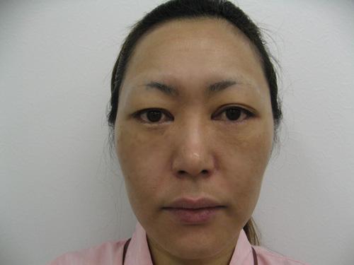 ナチュラルファイバー(頬、中顔面)・ヒアルロン酸注入(涙袋)施術前(正面)