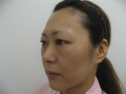 ナチュラルファイバー(頬、中顔面)・ヒアルロン酸注入(涙袋)施術前(ななめ)