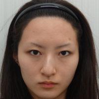 わし鼻修正・鼻尖縮小・耳介軟骨移植・鼻骨骨切り術前写真