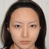 わし鼻修正・鼻尖縮小・耳介軟骨移植・鼻骨骨切り術後写真