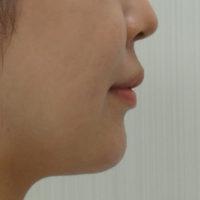 顎のヒアルロン酸 施術後(横)
