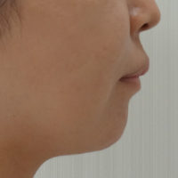 顎のヒアルロン酸 施術前(横)