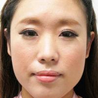 鼻プロテーゼ・鼻中隔延長施術前写真