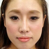 鼻プロテーゼ・鼻中隔延長施術後写真