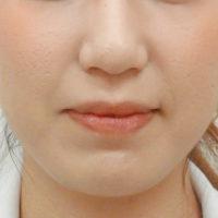 脂肪溶解注射BNLS(小顔注射)【術後】