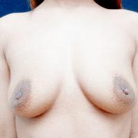 【豊胸術】乳腺下法(シリコン200cc)術前