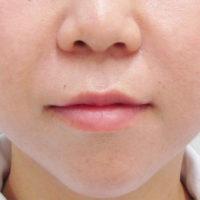 鼻唇溝ヒアルロン酸注入後写真