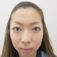 顎のプロテーゼ・鼻のプロテーゼ・鼻尖縮小・耳介軟骨移植の術前正面写真