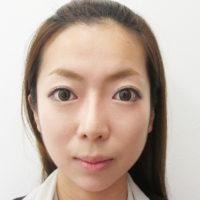 顎のプロテーゼ・鼻のプロテーゼ・鼻尖縮小・耳介軟骨移植の術後正面写真