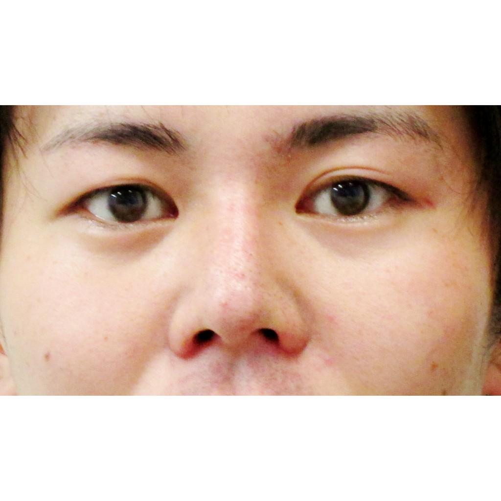 小鼻縮小術後正面アップ写真