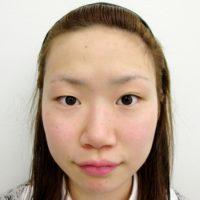 二重埋没法・鼻のプロテーゼ施術前写真