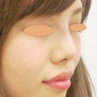 鼻のヒアルロン酸 施術後(ななめ)