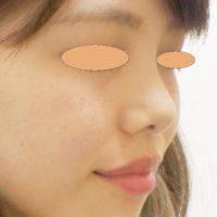 鼻のヒアルロン酸 施術前(ななめ)