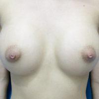 【豊胸術】乳腺下法(シリコン250cc)術後