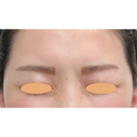 眉間のボトックス注射 術後