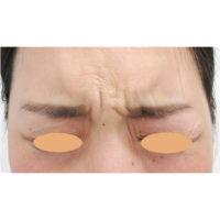眉間のボトックス注射 術前