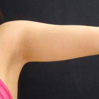 【脂肪吸引】二の腕(振袖・肩の張り出し)術前