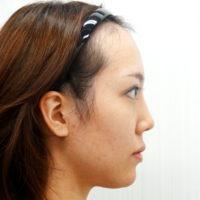 顎のプロテーゼ・二重切開法・目頭切開法 術後