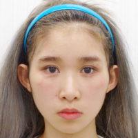 鼻のプロテーゼ術前写真