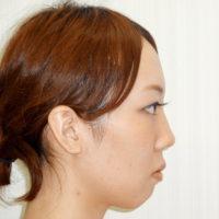 顎のプロテーゼ・二重切開法・目頭切開法 術前
