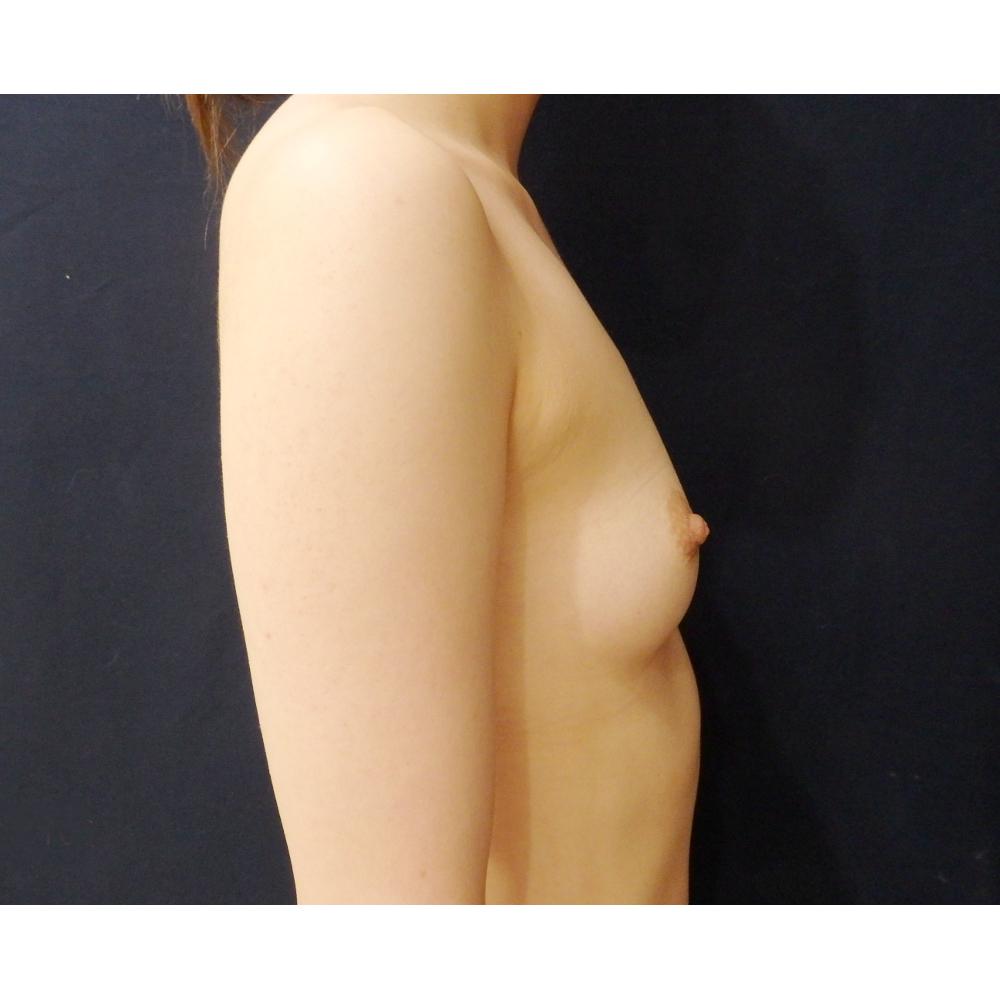 【豊胸術】脂肪注入術前