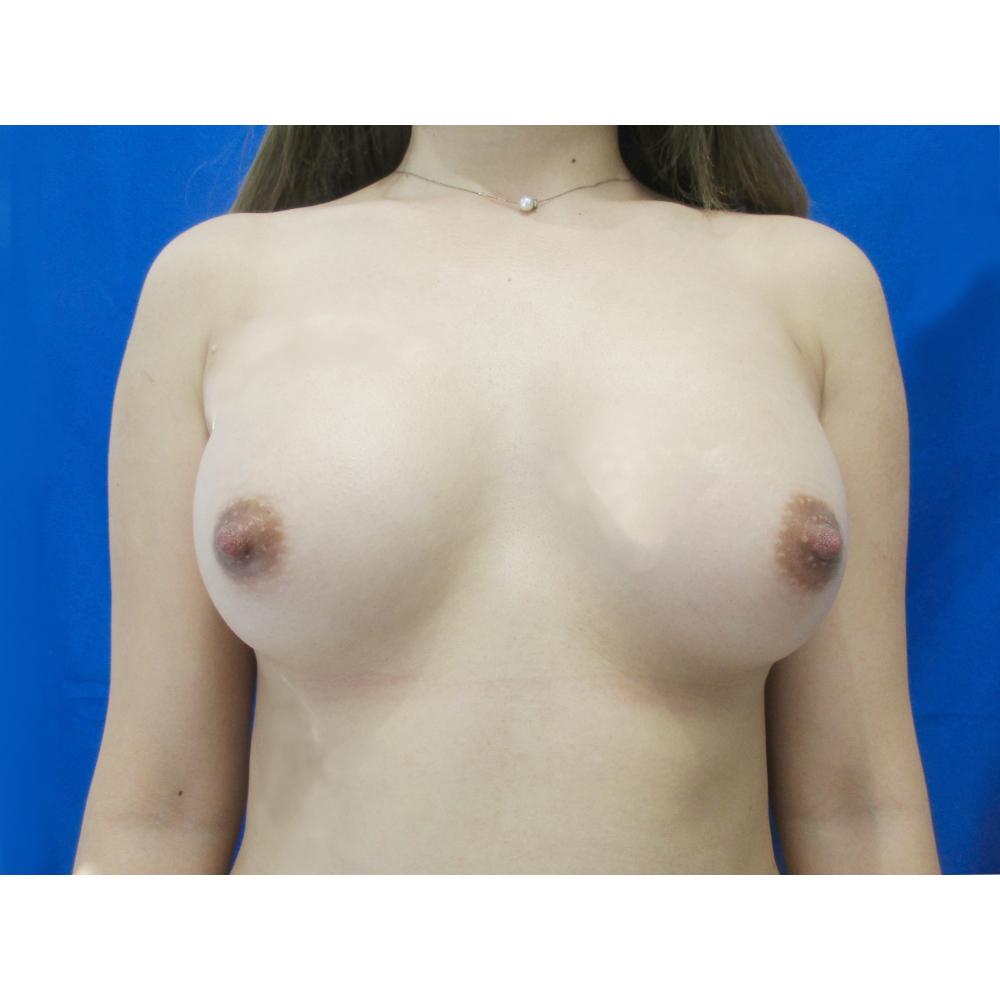 【脂肪吸引】太もも(全周【臀部含む】)・【豊胸術】脂肪注入 ※パーフェクト脂肪吸引術後