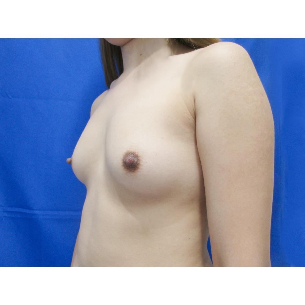 【脂肪吸引】太もも(全周【臀部含む】)・【豊胸術】脂肪注入 ※パーフェクト脂肪吸引術前