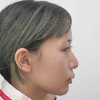 顎のプロテーゼ施術後横向き写真