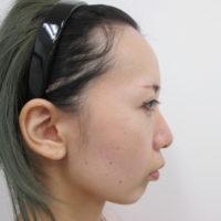 顎のプロテーゼ施術前横向き写真