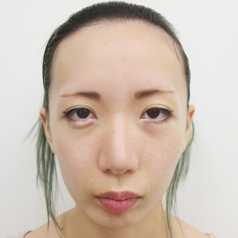 顎 プロテーゼ