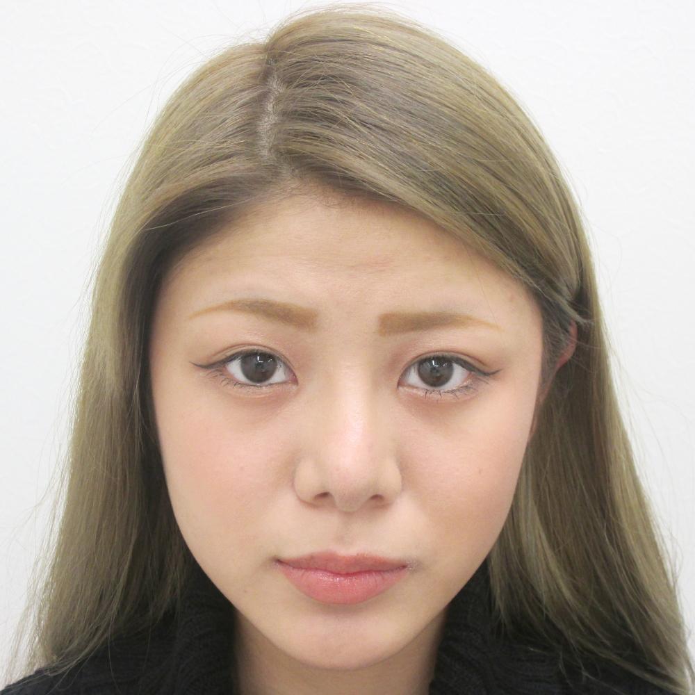 鼻のプロテーゼ挿入・鼻尖縮小・耳介軟骨移植施術後正面写真