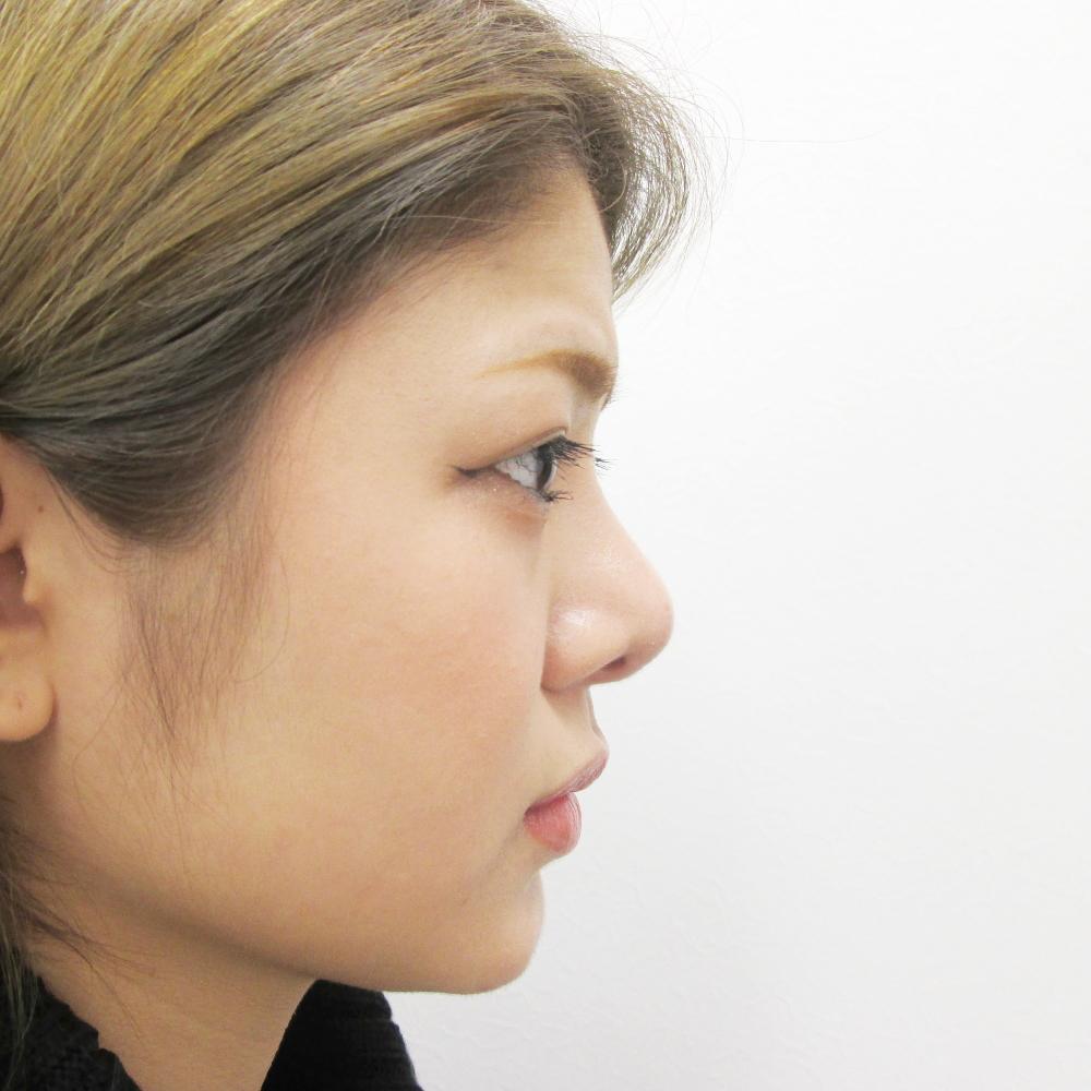 鼻のプロテーゼ挿入・鼻尖縮小・耳介軟骨移植施術後横からの写真