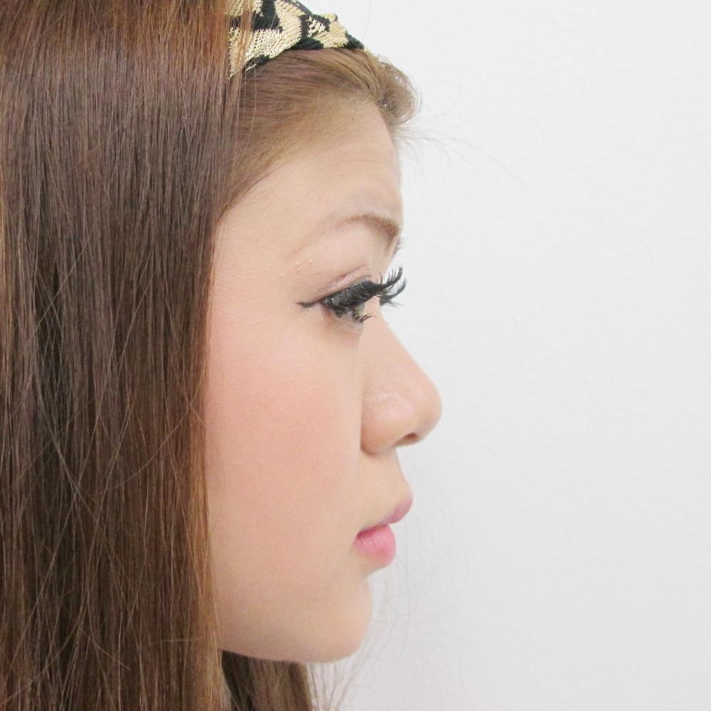 鼻のプロテーゼ挿入・鼻尖縮小・耳介軟骨移植施術前横からの写真