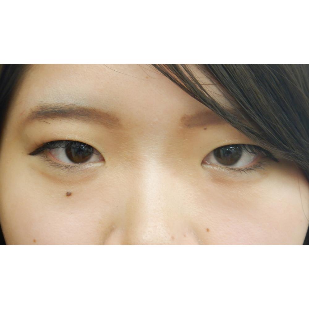 二重埋没法・お鼻のヒアルロン酸・涙袋のヒアルロン酸 施術前(目元アップ)