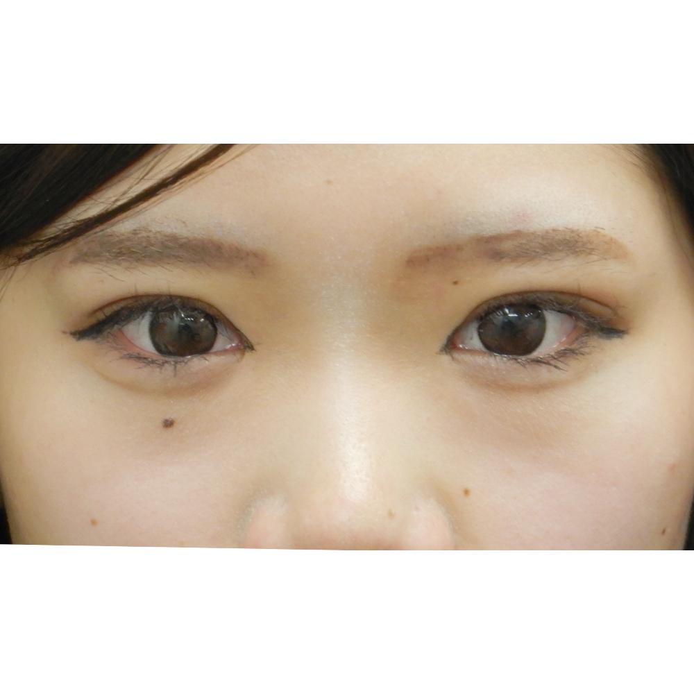 二重埋没法・お鼻のヒアルロン酸・涙袋のヒアルロン酸 施術後(目元アップ)