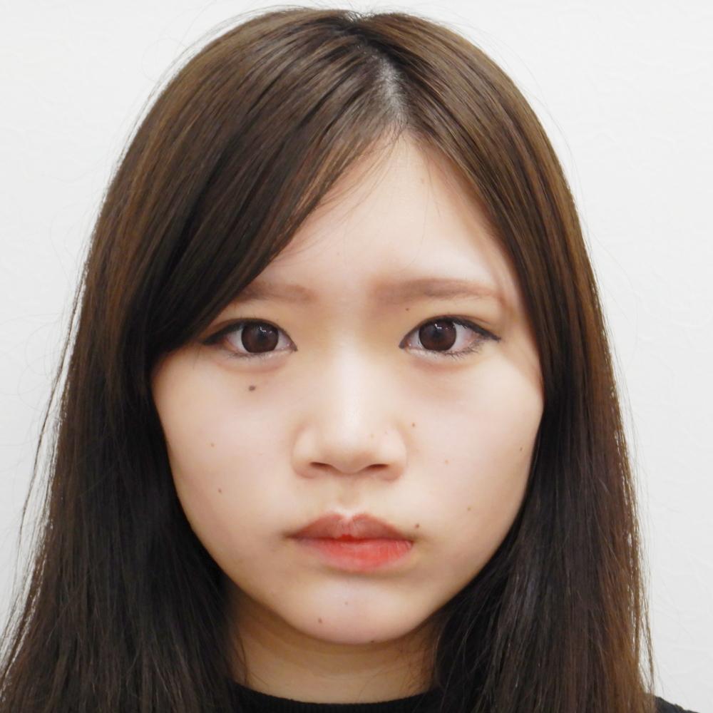 二重埋没法・お鼻のヒアルロン酸・涙袋のヒアルロン酸 施術後(正面・メイクあり)