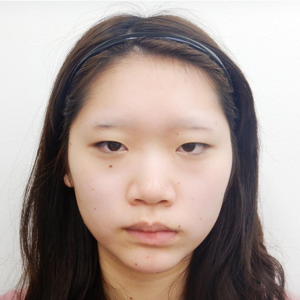 二重埋没法・鼻と涙袋へのヒアルロン酸注入術前メイク無し正面写真