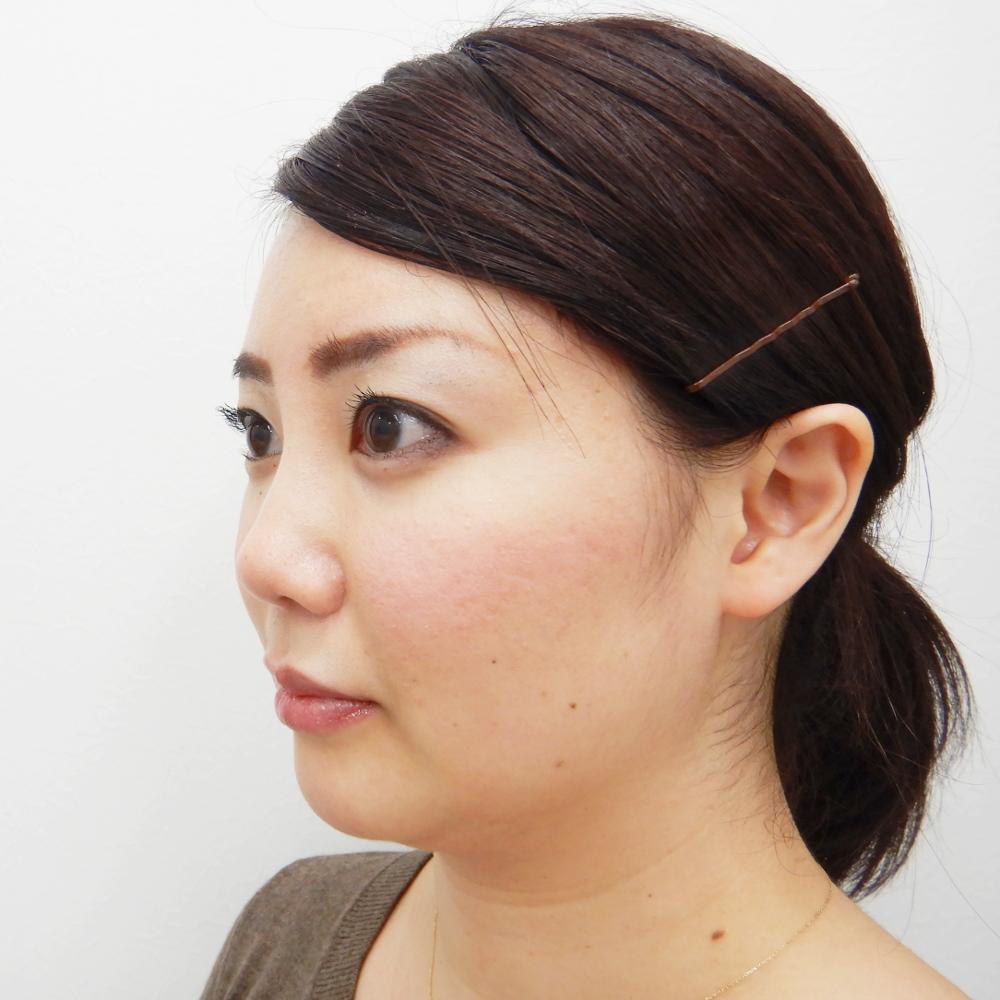 鼻尖縮小・耳介軟骨移植術前