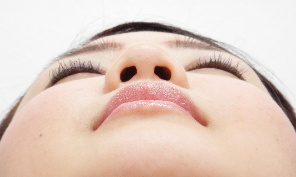 鼻尖縮小・耳介軟骨移植施術前