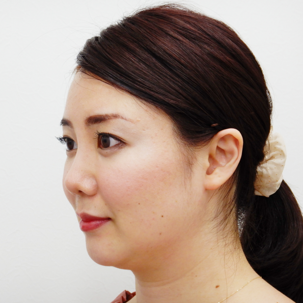 鼻尖縮小・耳介軟骨移植術後