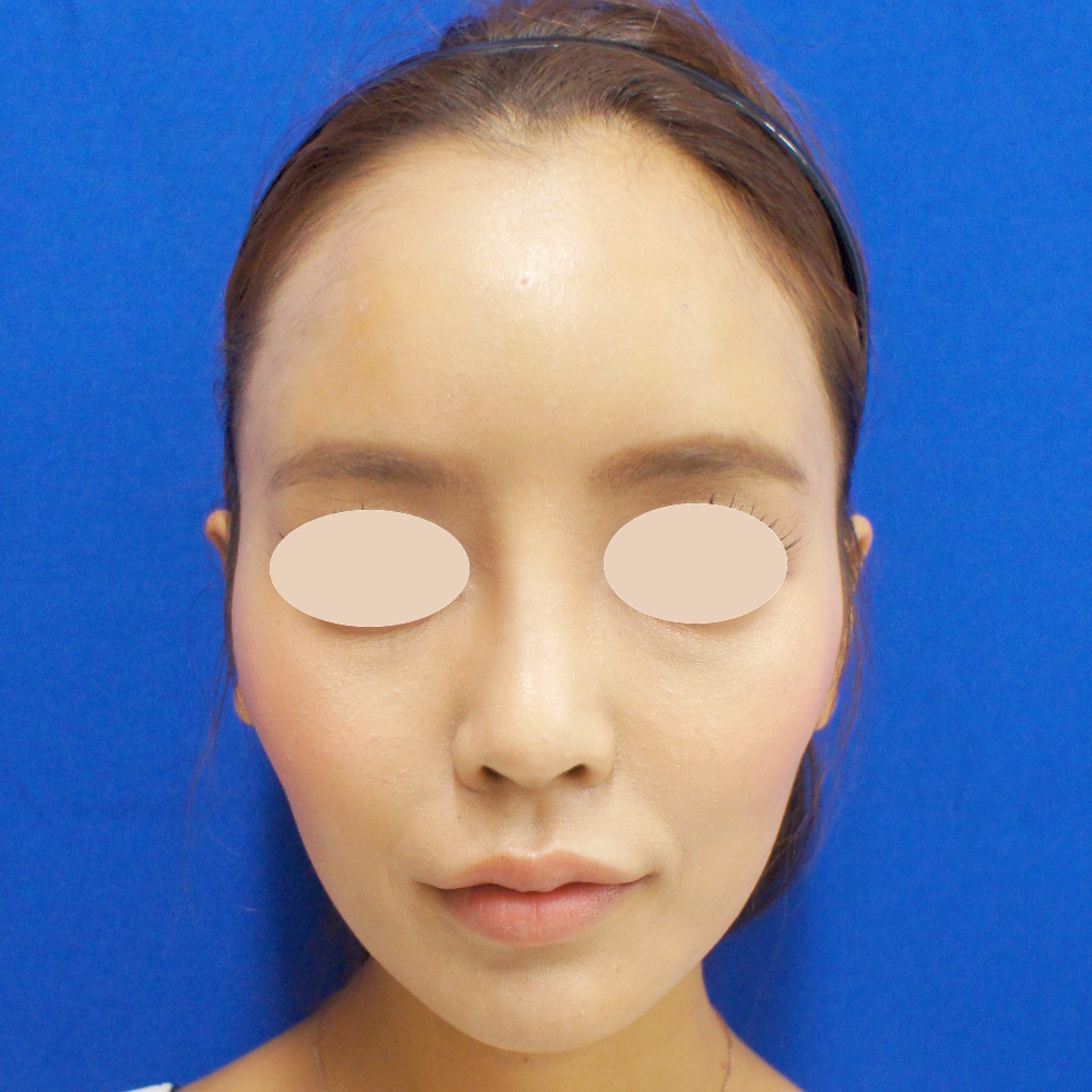 額のヒアルロン酸 施術後(正面)
