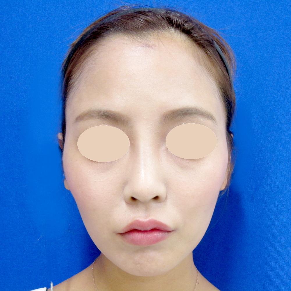 額のヒアルロン酸 施術前(正面)