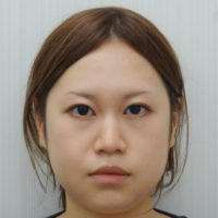 下眼瞼下制術・小鼻縮小施術後写真